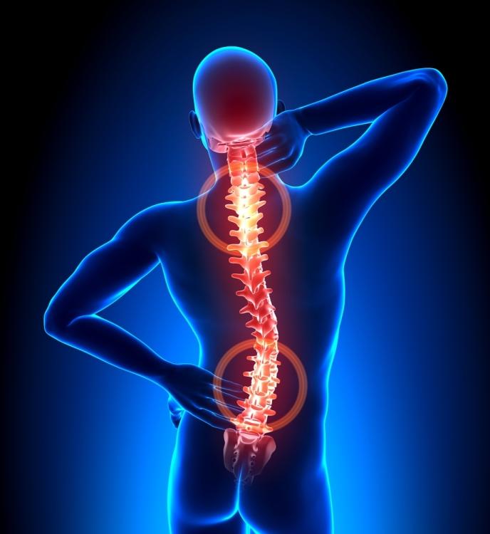 - dureri de spate 04 - Dr Mona Pristavu: Care sunt principalele cauze ale durerilor de spate