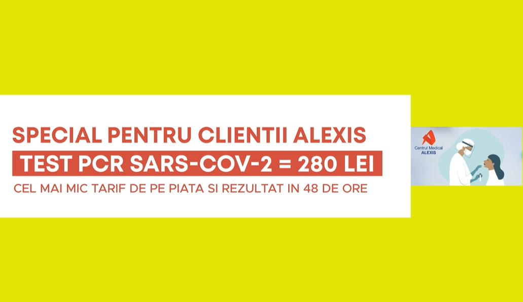 - test PCR 280 CM Alexis 2021 - Test PCR Sars-Cov-2 la cel mai mic tarif din Bucuresti